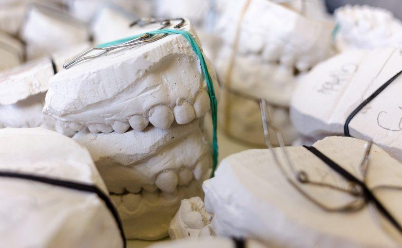 Zły sposób żywienia się to większe niedostatki w jamie ustnej a dodatkowo ich brak